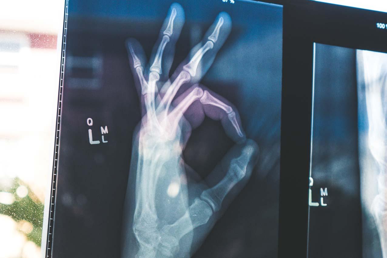 «X-perimente Mobil» soll Schülern Röntgentechnik nahebringen